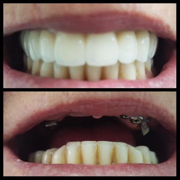 Clínica Dental Bodydent Implantes fijos