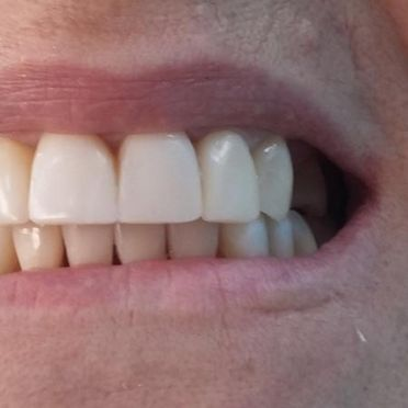 Clínica Dental Bodydent dientes