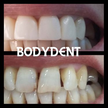 Clínica Dental Bodydent blanqueamiento dental