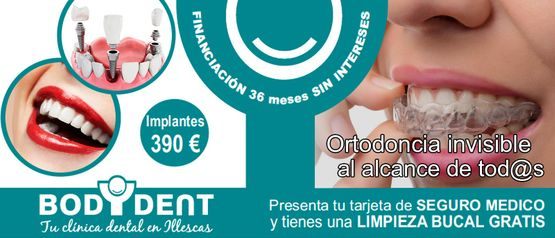 Clínica Dental Bodydent Mantenedores de espacio